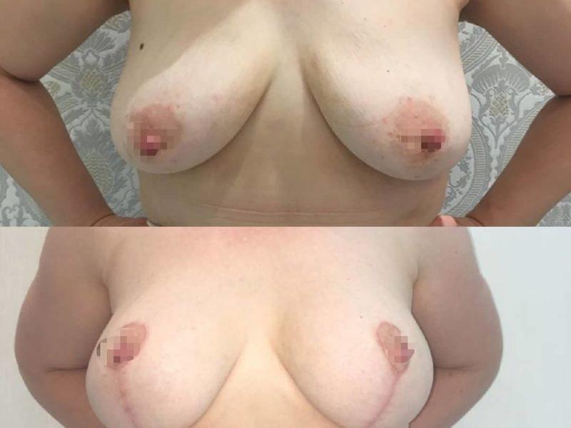 подтяжка груди Саратовцев