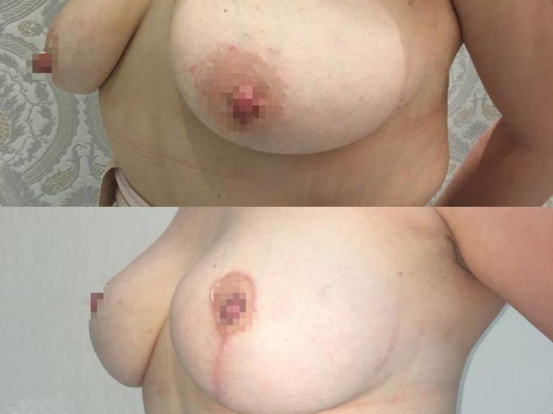 Подтяжка груди в Москве