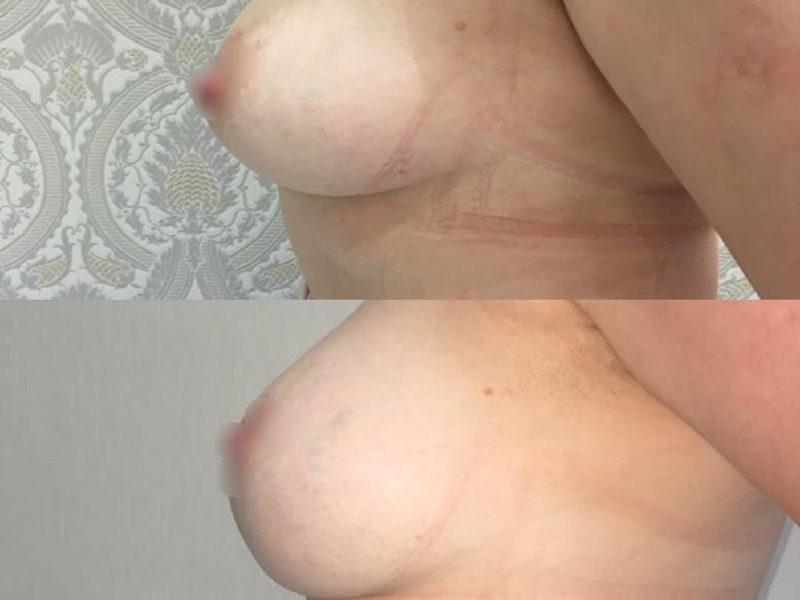 Подтяжка груди хирург