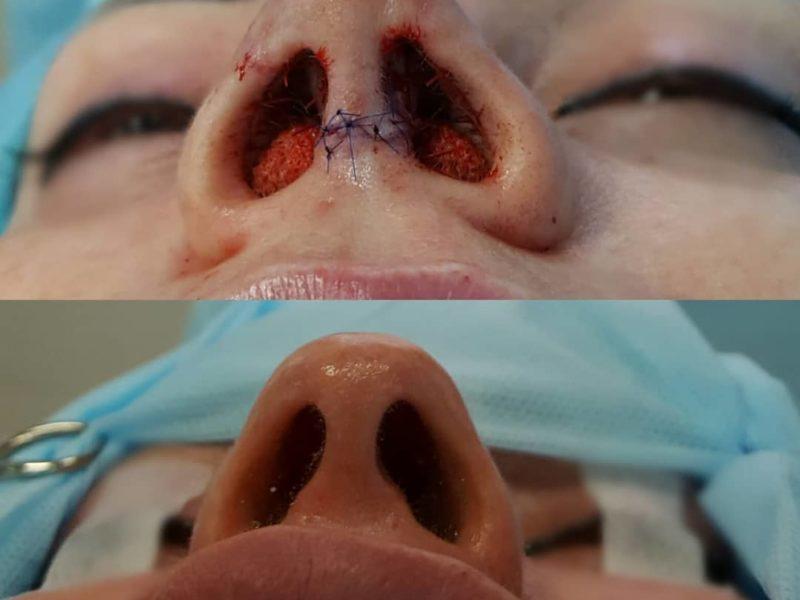 ринопластика саратовцев до и после