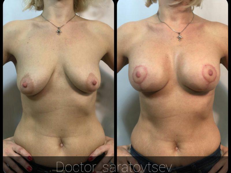 увеличение груди цена