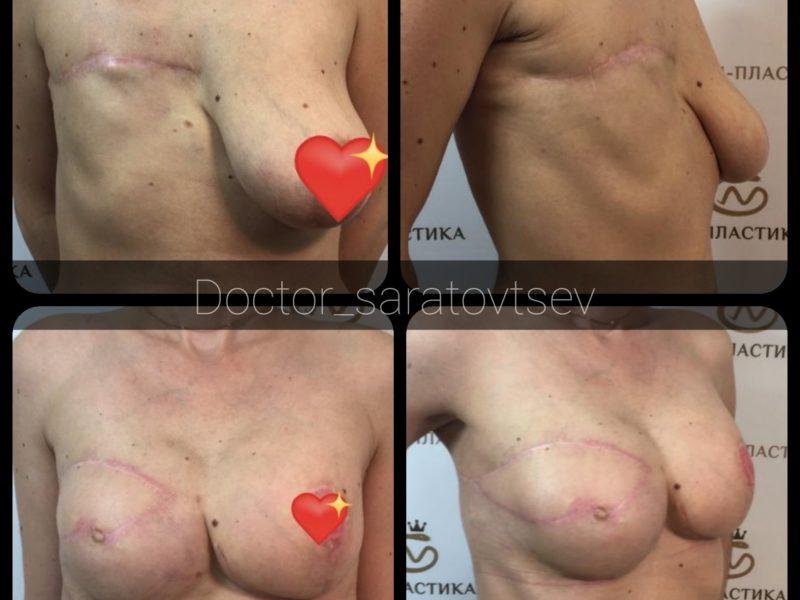 реконструкция груди Саратовцев