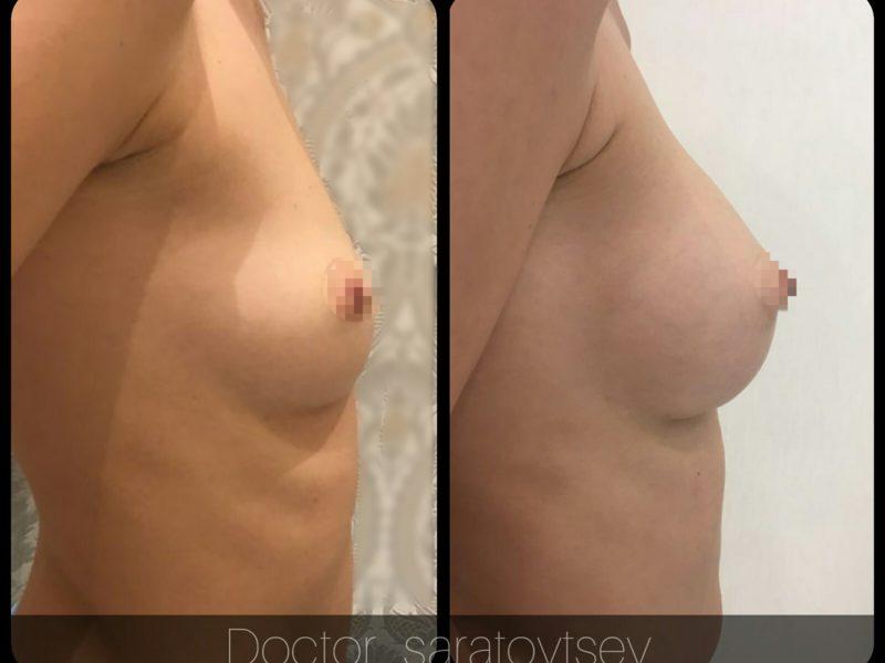 увеличение груди москва стоимость