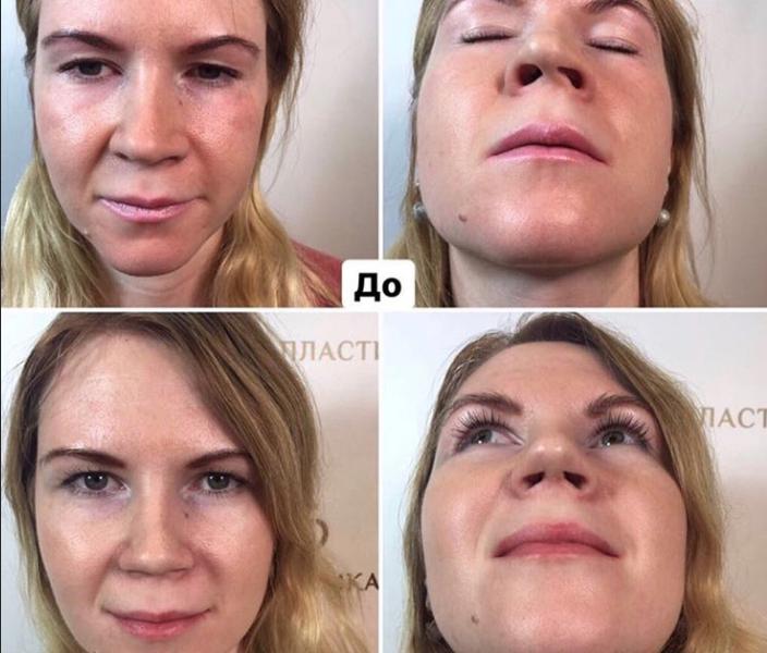 ринопластика носа в москве саратовцев