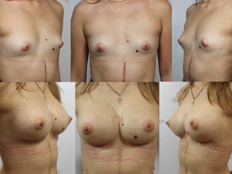 грудь после маммопластики