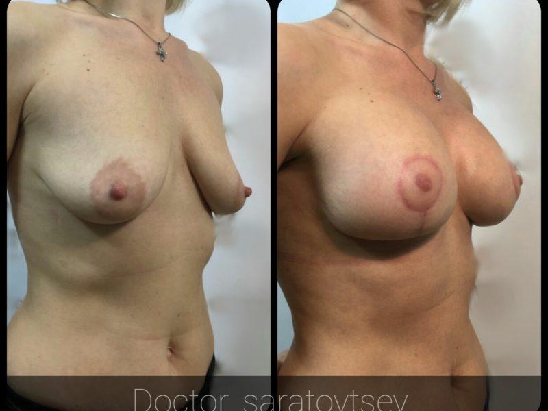 увеличение груди хирурги москвы