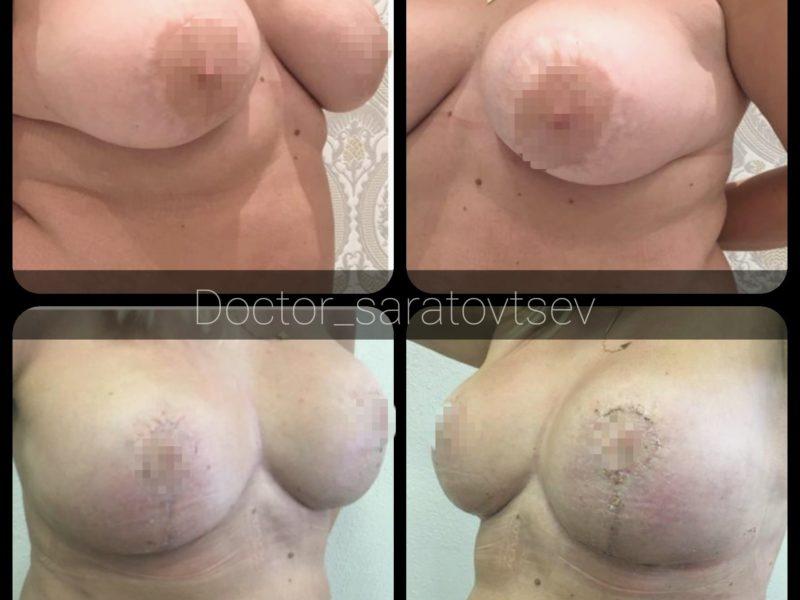 операция +по увеличению груди в москве