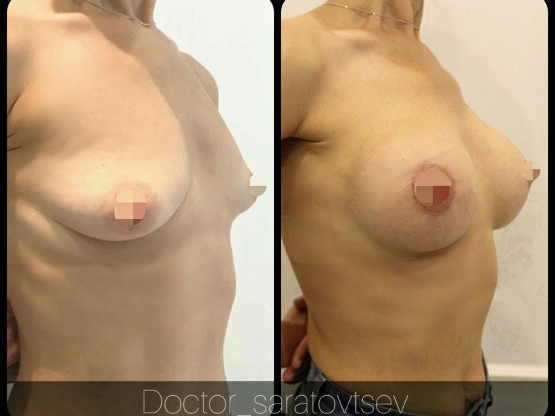 сколько стоит увеличение груди в москве