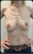 Вертикальная мастопексия (подтяжка груди)
