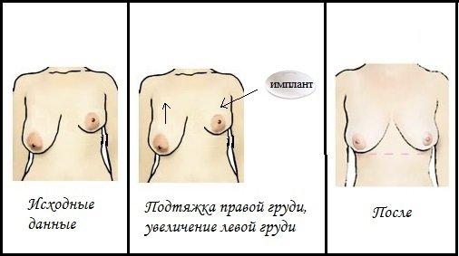 Увеличение одной груди – цена